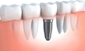 ایمپلنت دندان Dental implant چیست؟
