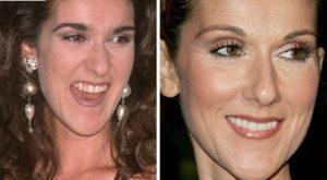 لبخندهای میلیون دلاری: سلن دیون