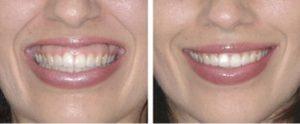 Cosmetic Gum Surgery جراحی زیبایی لثه