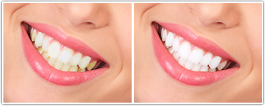 بلیچینگ یا سفید کردن دندان ها