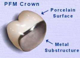 روکش دندان Crown