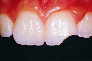 یازده ۱۱ عادت که دندانهای شما را نابود می کند