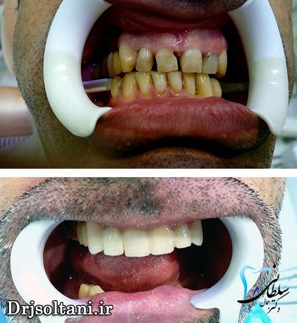 نمونه کار دندان پزشکی زیبایی