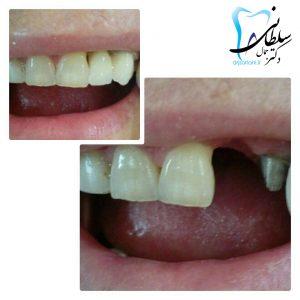 جایگزینی دندانهاي از دست رفته با روکش سرامیکی
