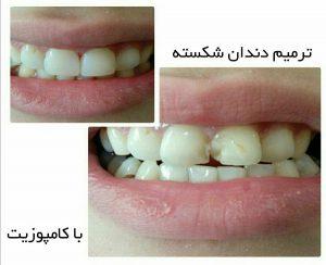 نمونه کار ترمیم دندانهای شکسته