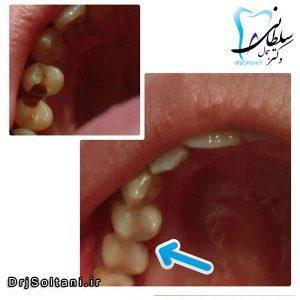 ترمیم و بازسازی دندانها با کامپوزیت