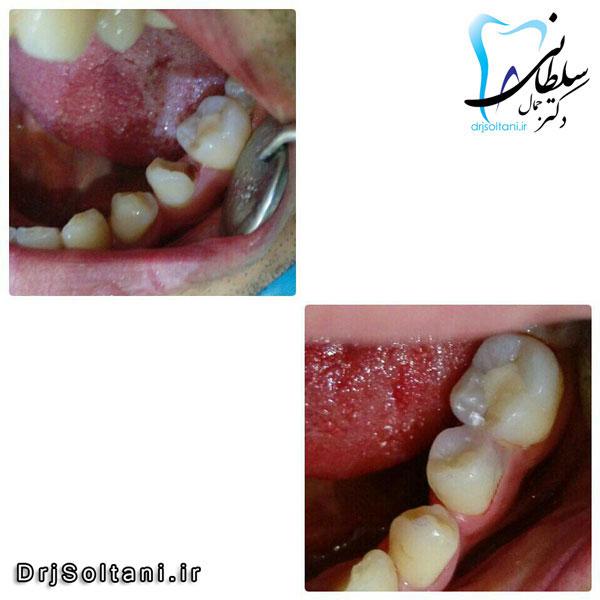 بازسازی و ترمیم تاج دندان با کامپوزیت