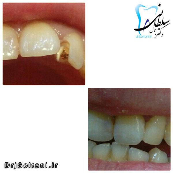 پین و بازسازی دندان با کامپوزیت
