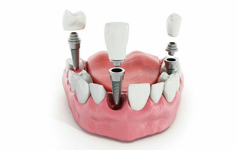 اصلاح جای خالی دندان