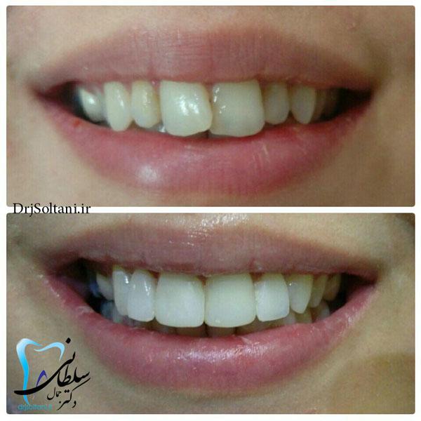 اصلاح طرح لبخند برای زیبایی خنده