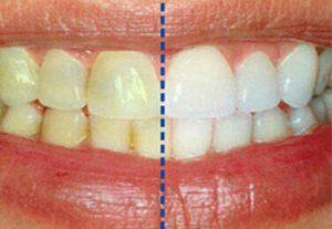 جرمگیری و تفاوت آن با سفیدکردن دندانها