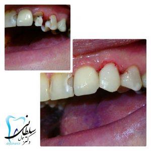 بازسازي تاج ازدست رفته دندان نيش با مواد همرنگ