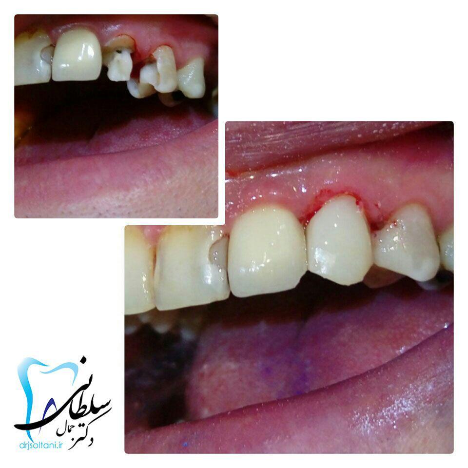 بازسازی تاج ازدست رفته دندان نیش با مواد همرنگ