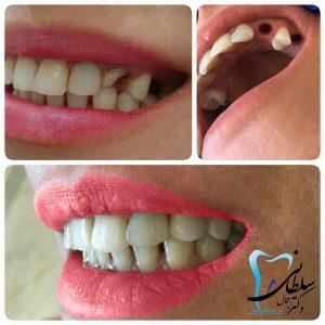 جایگزینی دندانهای از دست رفته ی نیش و آسیای کوچک با ایمپلنت