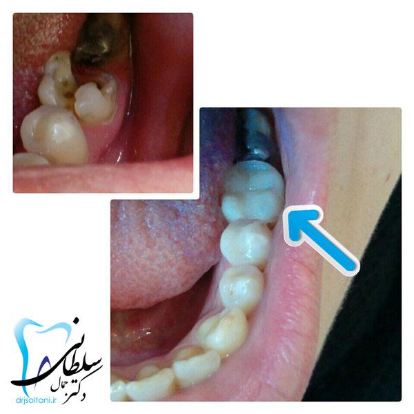 بازسازی دندان با مواد همرنگ
