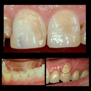 دلایل شايع از دست دادن مینای دندان یا تحلیل لثه ها