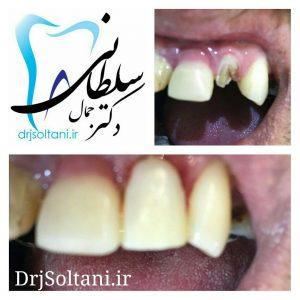 بازسازی تاج دندان پیشین با کامپوزیت