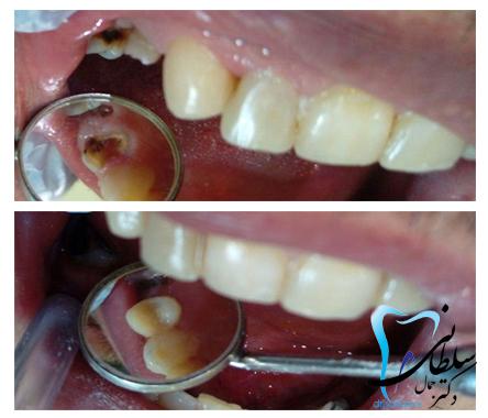 پین و بازسازی دندان اسیای کوچک با مواد همرنگ