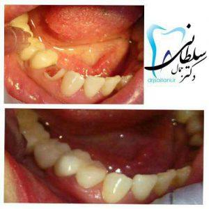 بازسازی تاج دندان آسیای کوچک با کامپوزیت در یک جلسه