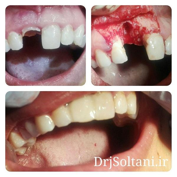 کاشت ایمپلنت در ناحیه دندان شکسته