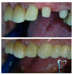 پروتز ثابت دندان نیش و دو آسیای کوچک
