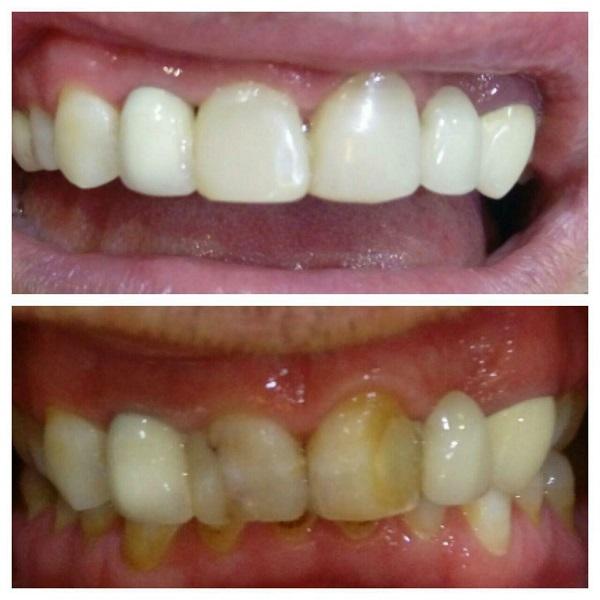 اصلاح رنگ و اندازه دندانهای جلویی