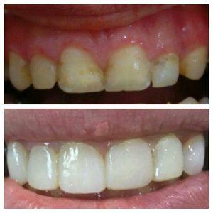 اصلاح اندازه، رنگ و شكل دندانها