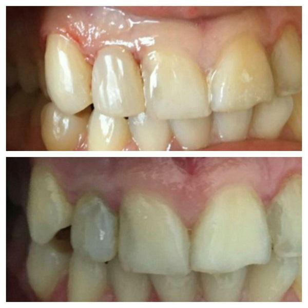 اصلاح رنگ دندان و اندازه دندان پیشین کناری