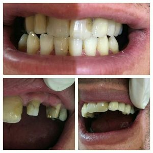 جایگزینی دندانهای ازدست رفته بوسیله روکش چینی