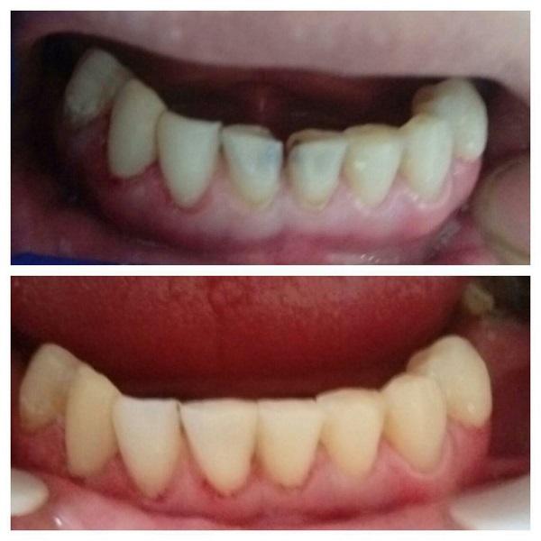 ترمیم همرنگ دو دندان قدامی فک پایین