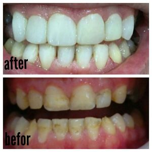 اصلاح رنگ واندازه دندانها بوسیله کامپوزیت(لمینت کامپوزیتی)