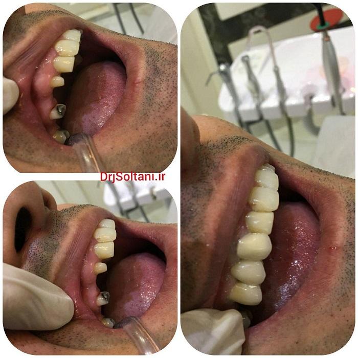 جایگزینی دندان های ازدست رفته به وسیله پروتز ثابت