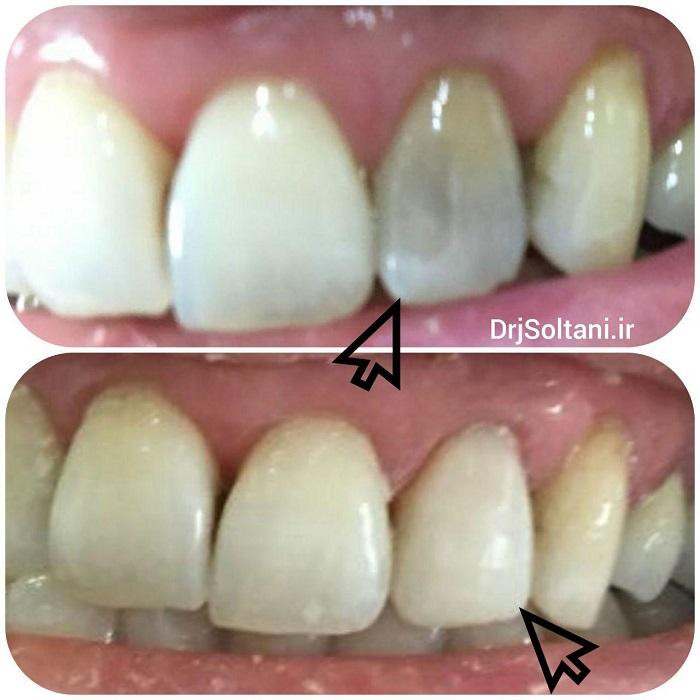 اصلاح شکل و رنگ دندان در یک جلسه