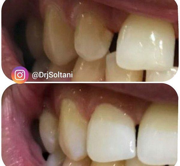 اصلاح شكل، اندازه و رنگ دندان پيشین