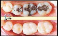 ترمیم دندان یا پرکردن دندان
