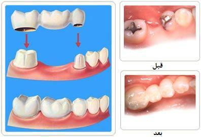 پروتز، بریج و روکش کلماتی که در مطب های دندانپزشکی بیشتر می شنوید