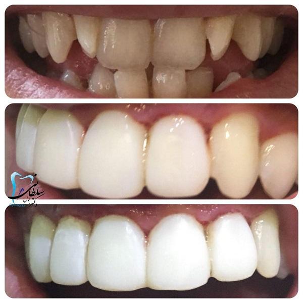 لمینت کامپوزیتی همراه با اصلاح شکل و اندازه دندانها