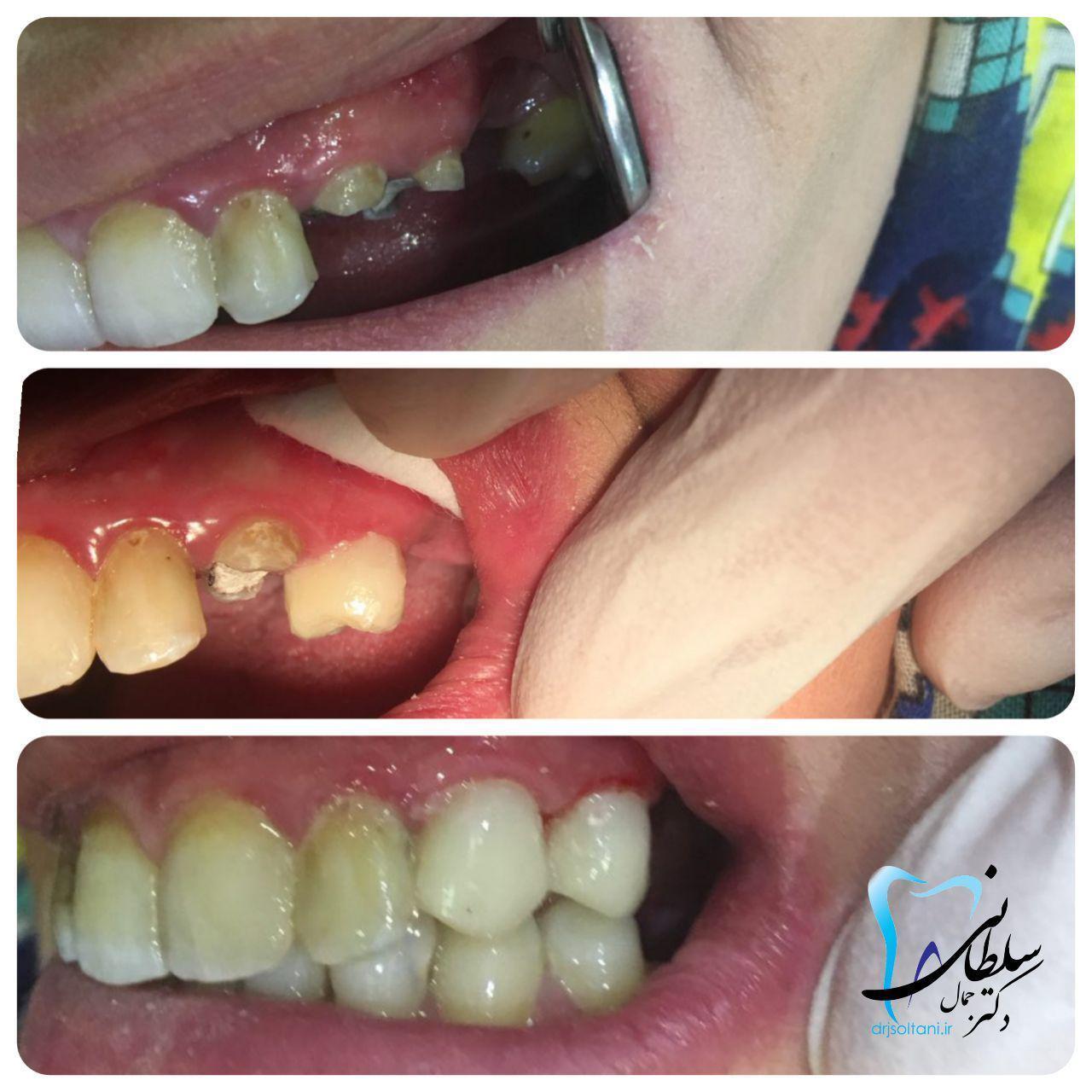 بازسازی تاج دندان های نیش و آسیای کوچک