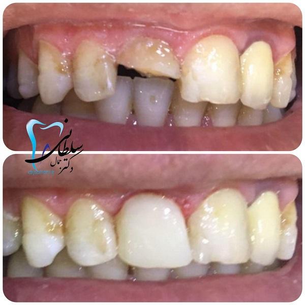بازسازی تاج دندان شکسته بوسیله کامپوزیت