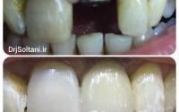 ایمپلنت دندان قدامی و یک واحد لمینت دندان کناری