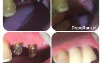 جایگزینی دندانهای آسیا با دو عدد ایمپلنت