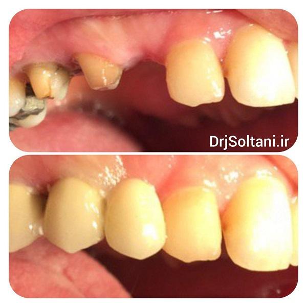 جایگزینی دندانهای نیش و آسیای کوچک با پروتز ثابت