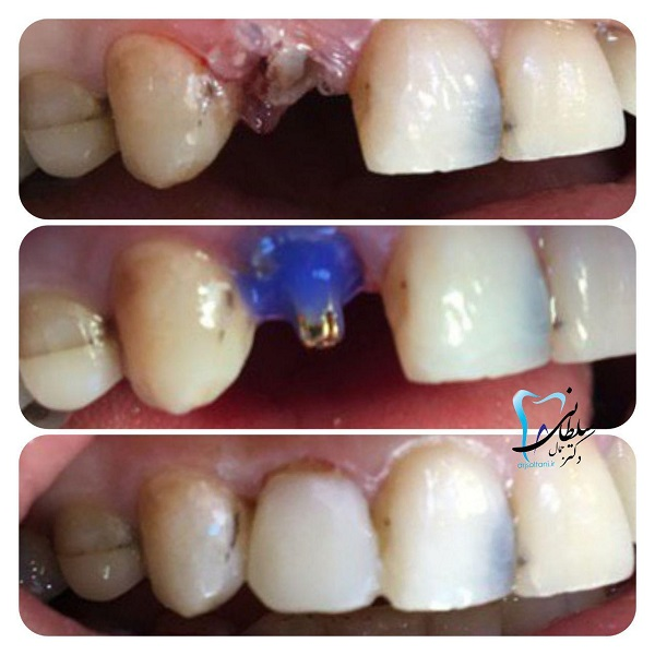 بازسازی تاج دندان پیشین در یک جلسه