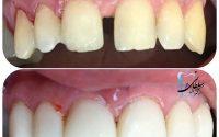 بستن فاصله بین دندانها و شش واحد لمینت کامپوزیتی برای اصلاح خط لبخند و تغییر رنگ دندانها در یک جلسه