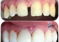 بستن فاصله بین دندانها و شش واحد لمینت کامپوزیتی