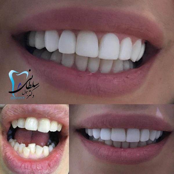 ۲۰واحد لمینت فک بالا پایین واصلاح شکل و نظم واندازه دندانها