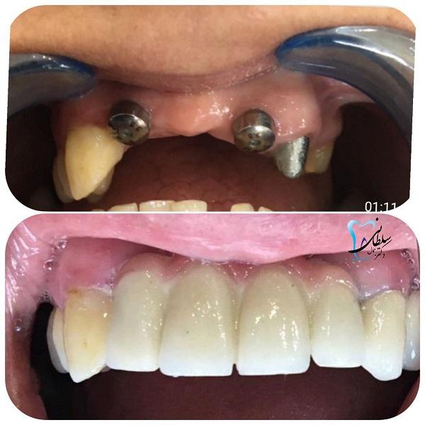 جایگزینی دندانهای جلو فک بالا با ایمپلنت