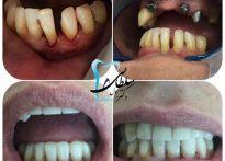 لمینت کامپوزیتی چهار دندان همراه با ایمپلنت