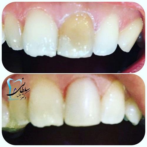 اصلاح و تغییر رنگ دندان به وسیله کامپوزیت