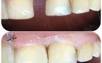 بستن فاصله دندان ها به وسیله کامپوزیت